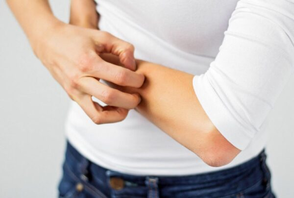bijuterias podem lhe causar alergias
