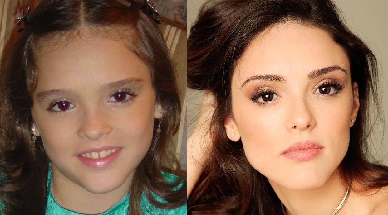 isabelle drummond antes e depois