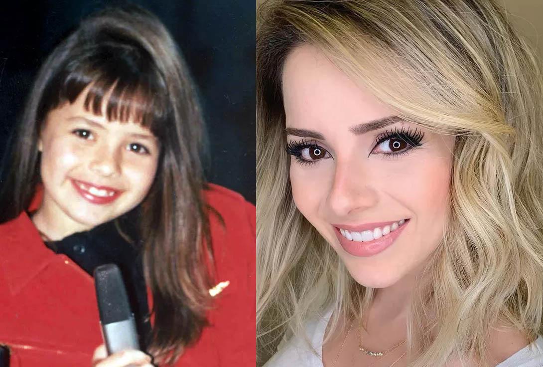 sandy antes e depois